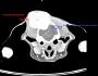 Операция на тумор на  черепа, притискащ главния мозък.